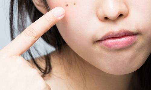 鼻筋 ほくろ 鼻筋横のほくろ除去で顔の印象がガラッと変わる!